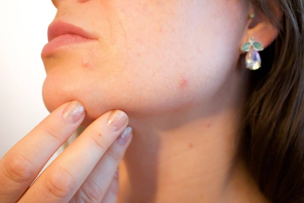 How Do You Prevent Pimples? Let Us Check Some Of The Steps Which Will Help